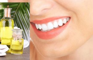 Dầu dừa có khả năng ức chế hoạt động của nhiều vi khuẩn giúp ngăn ngừa viêm nhiễm răng miệng