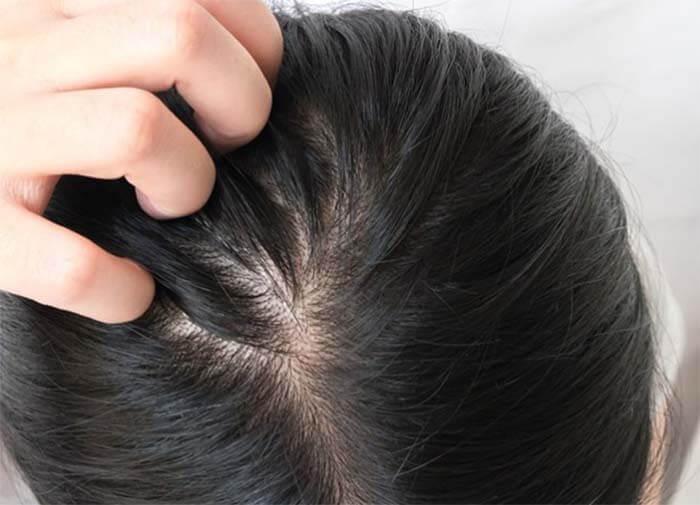 Dưỡng tóc mềm mại, bóng khỏe với tinh dầu sả