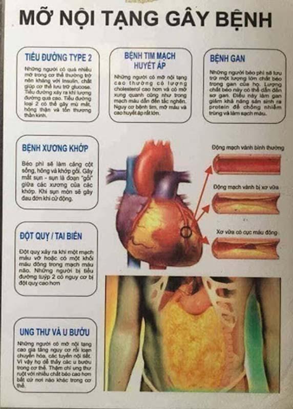 Tác hại của mỡ nội tạng