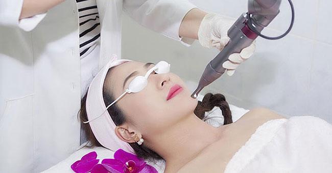 điều trị nám bằng lazer bằng công nghệ cao