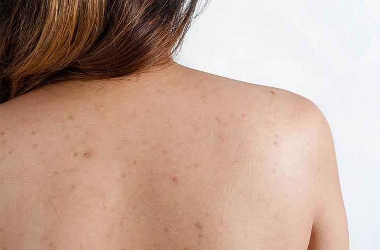 phương pháp điều trị mụn thâm lưng hiệu quả
