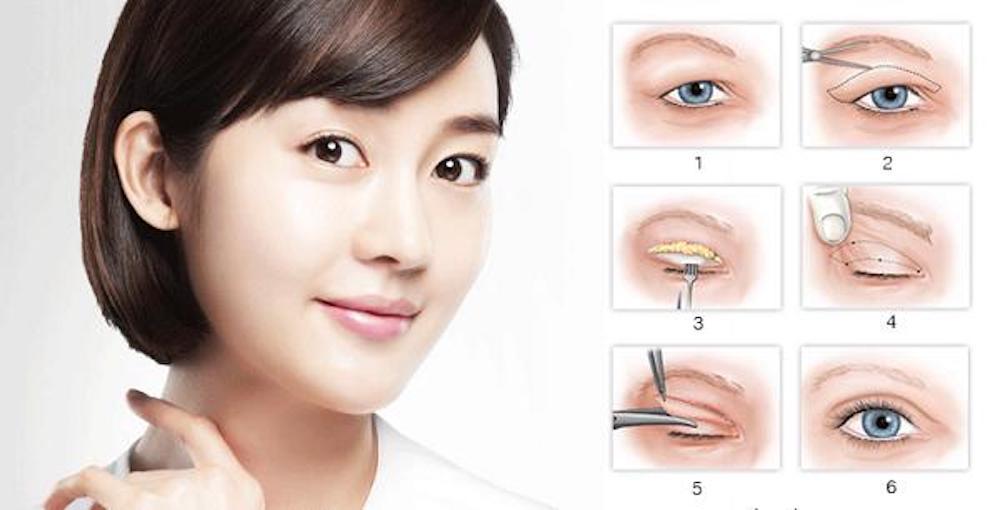 phương pháp cắt mắt 2 mí