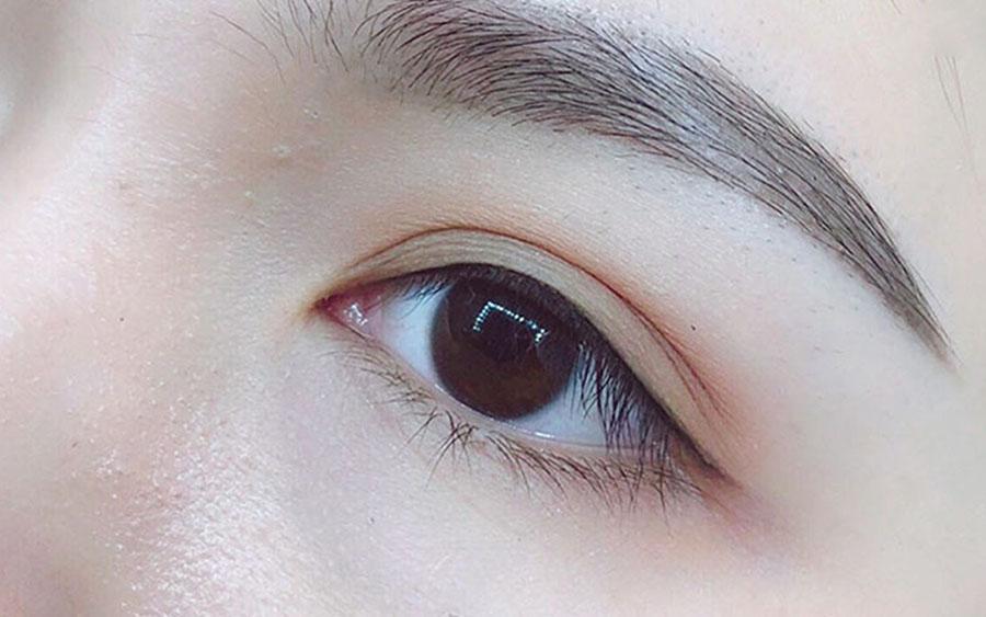 phun mí mắt mở tròng là gì?