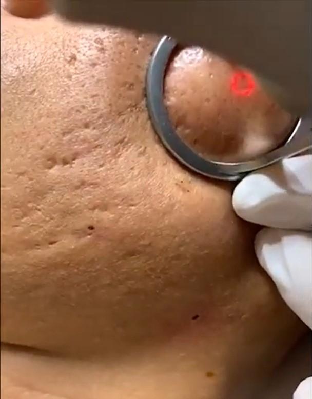 Phương pháp điều trị sẹo rỗ tại thẩm mỹ viện Mailisa