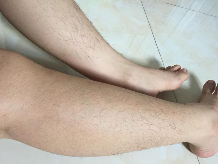 triệt lông chân có hại gì không?